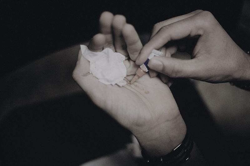 sekundové lepidlo na rezné rany